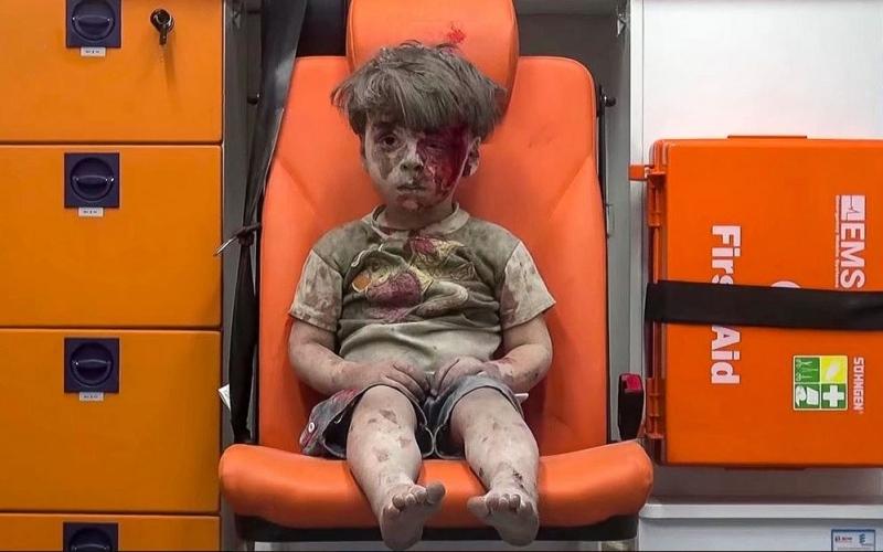 الصورة: بالفيديو والصورة ... صدمة الطفل السوري عمران تملآ الأخبار ومواقع التواصل