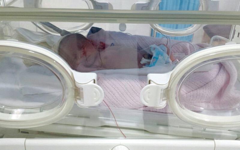 «سيرين» ولدت قبل موعدها بوزن 600 غرام