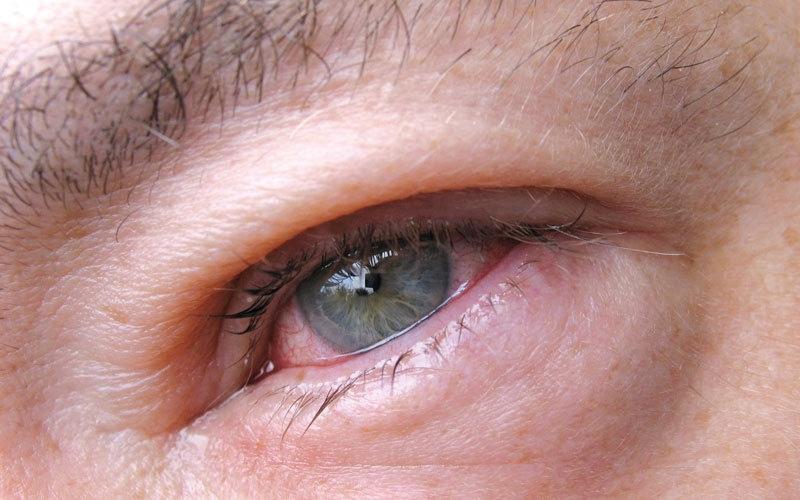 أعراض تكشف «أنفلونزا العيون»