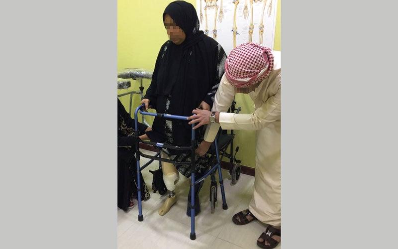 قدم اصطناعية لـ «أم محمد» تعيدها إلى ممارسة حياتها الطبيعية
