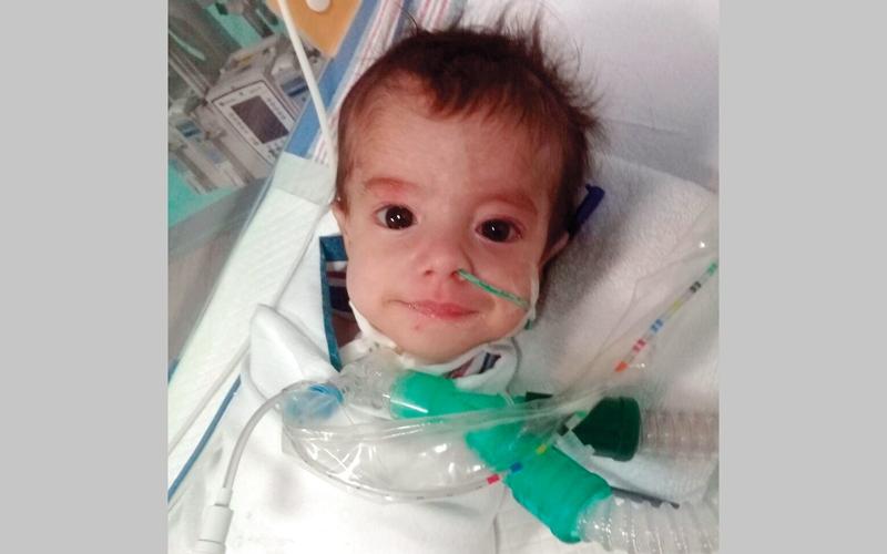 الرضيع «محمد» يعاني تشوّهات خلقية وصعوبة في التنفس