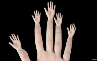 الصورة: #سؤال_بسيط... لماذا تختلف اصابع اليد ..وماسبب وجود البصمات ؟