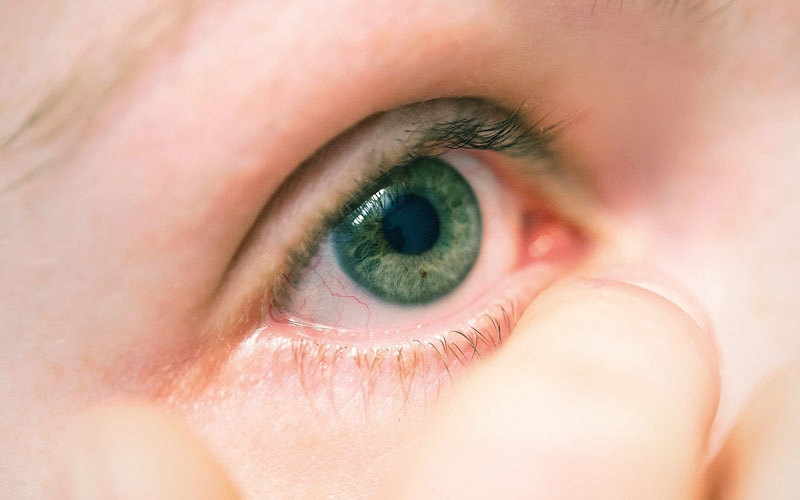 الوصفات المنزلية لا تعالج التهاب ملتحمة العين