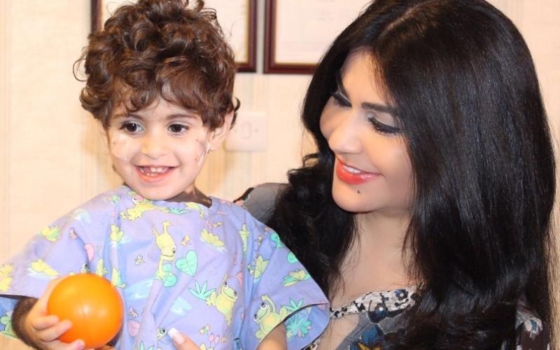 بالصور.. الطفلة السعودية إلين بعد استئصال جزء من الشامة العملاقة